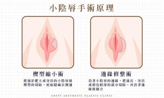 小陰唇手術原理