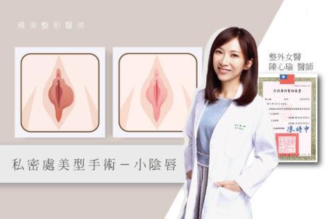 小陰唇手術