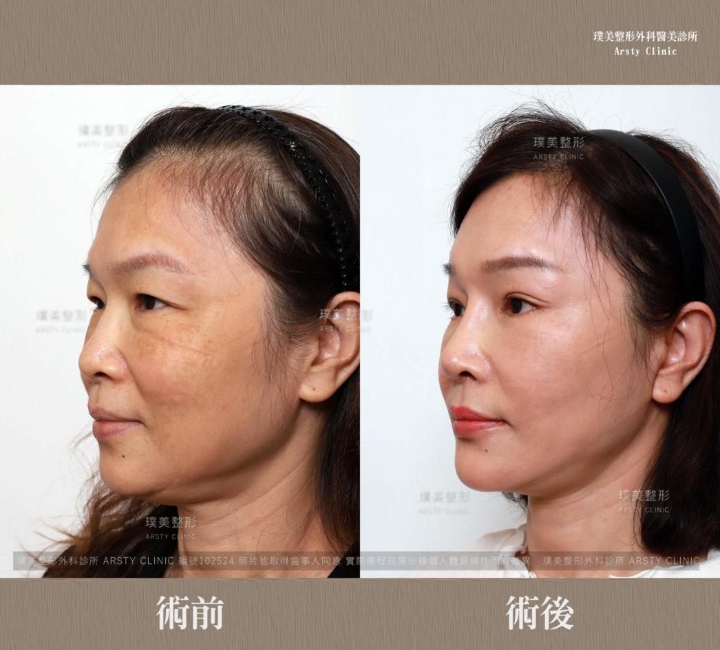 102524內視鏡提眉全臉拉皮隆鼻縫雙眼皮