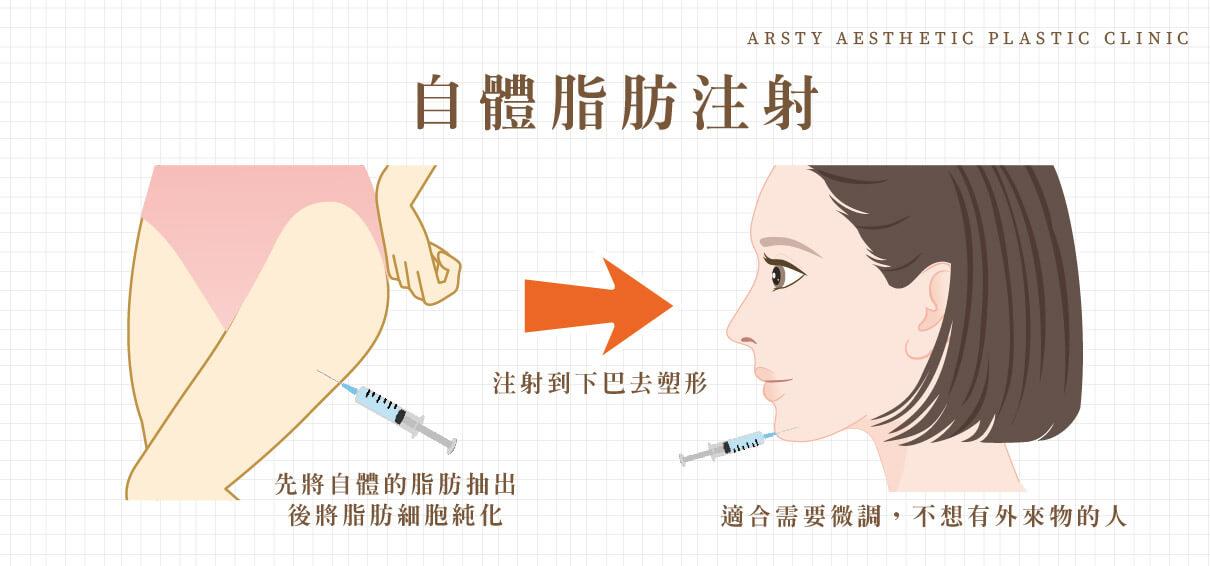 下巴手術-自體脂肪注射