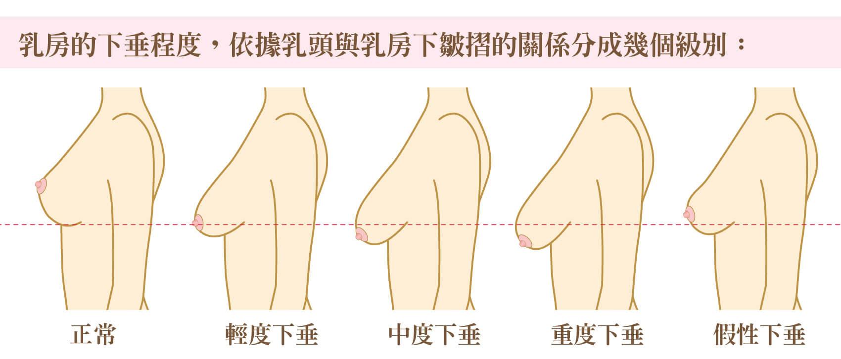 乳房的下垂程度