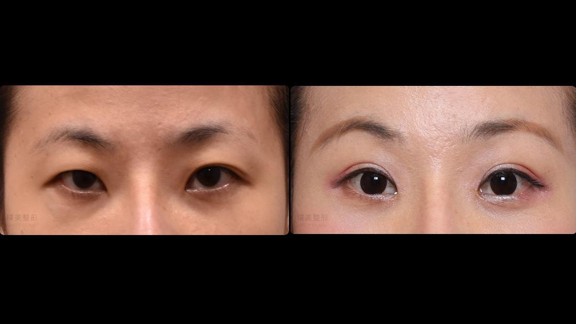 縫雙眼皮|內視鏡提眉