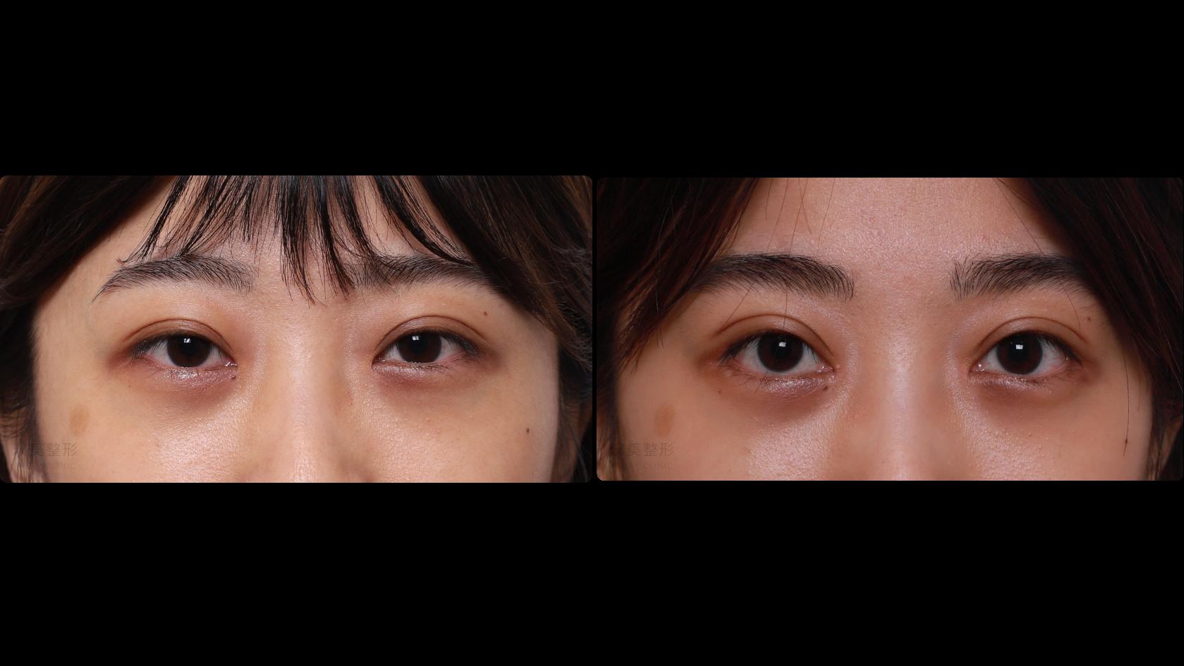縫雙眼皮|提眼瞼肌|開眼尾|眼瞼下置