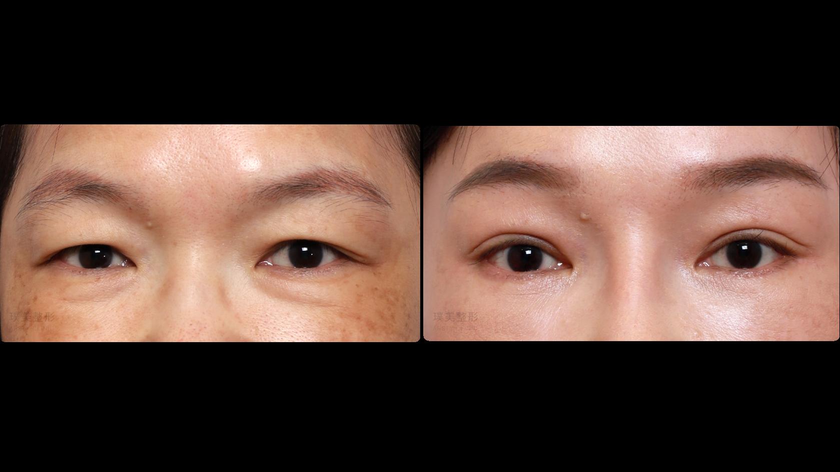 縫雙眼皮|外開眼袋|自體補脂淚溝|內視鏡提眉
