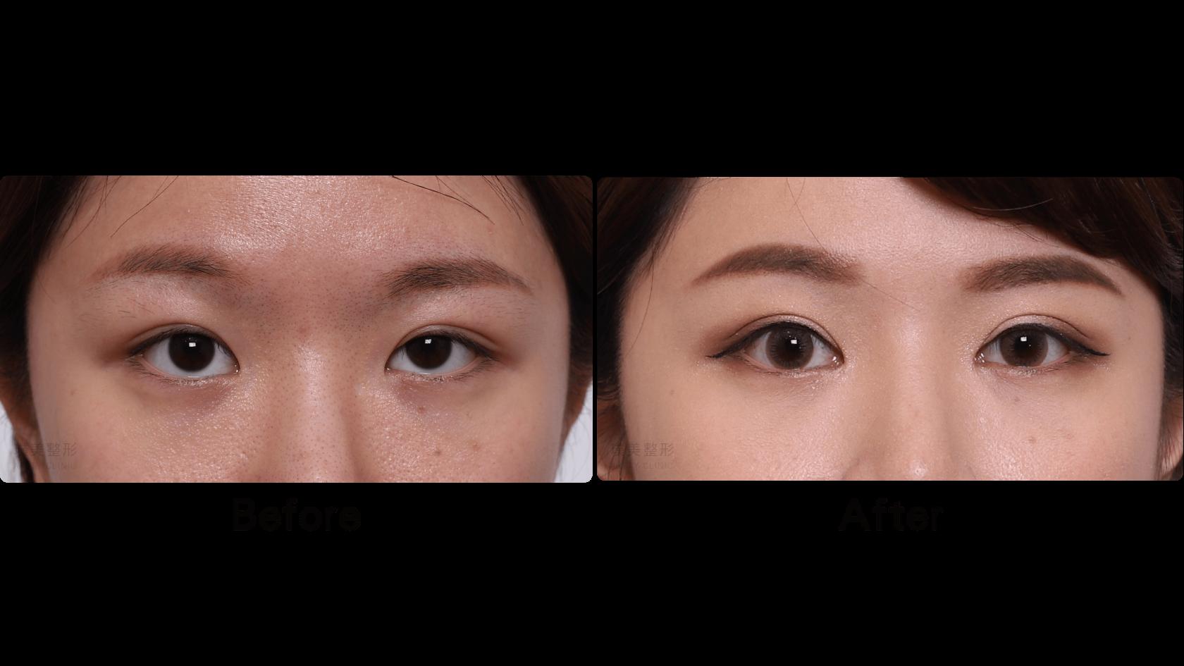 割雙眼皮|開眼頭|提眼瞼肌|眉下取脂