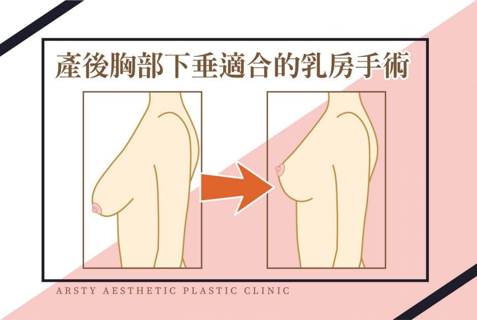 產後胸部下垂