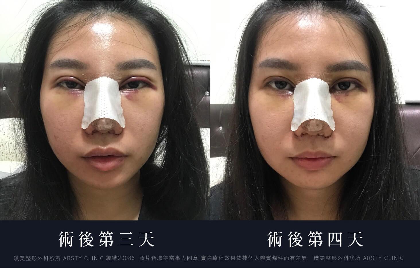 縫雙眼皮 開眼頭 隆鼻 縮鼻翼 敲鼻骨 2