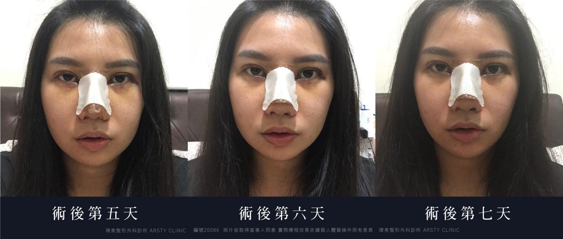 縫雙眼皮 開眼頭 隆鼻 縮鼻翼 敲鼻骨 3
