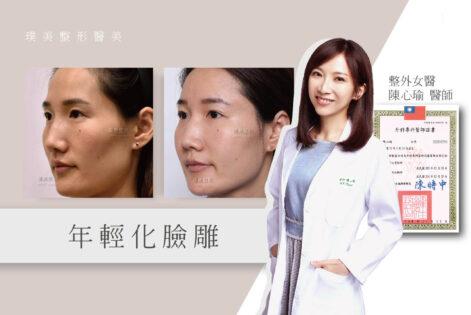 陳醫師觀點-臉雕