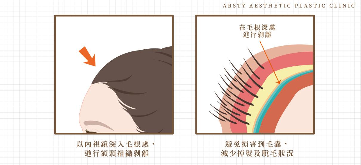 縮額頭手術-內視鏡髮際線