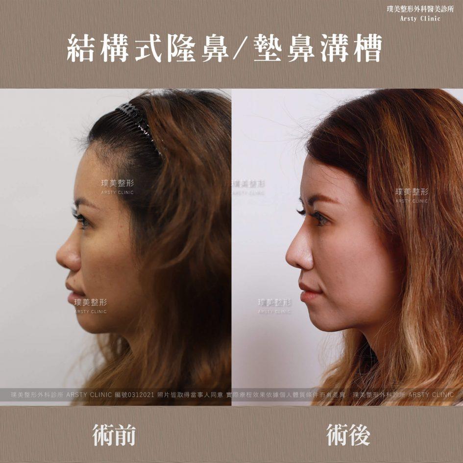 0312021結構式隆鼻手術墊鼻溝槽 11