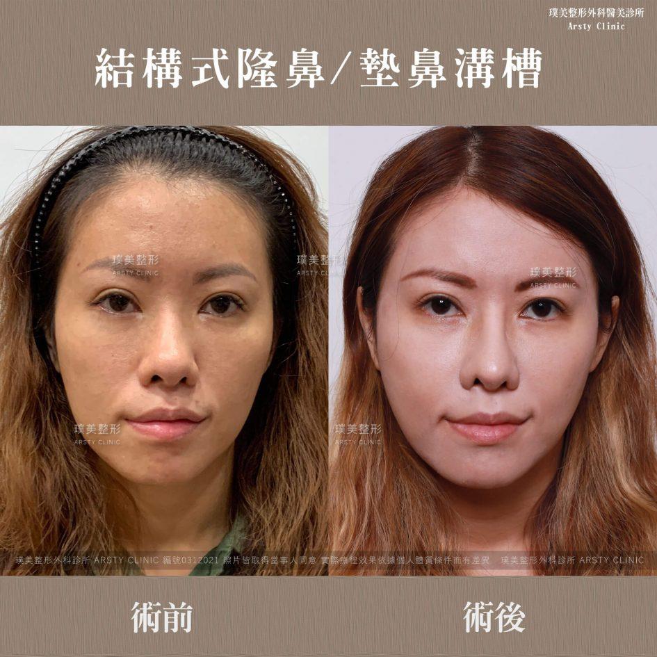 0312021結構式隆鼻手術墊鼻溝槽 12