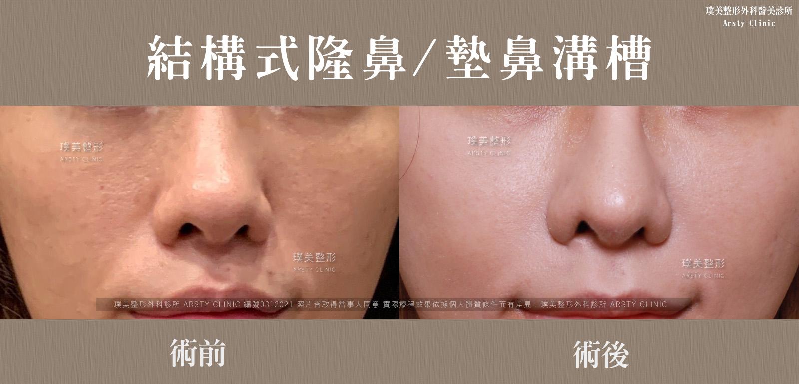 0312021結構式隆鼻手術墊鼻溝槽 15