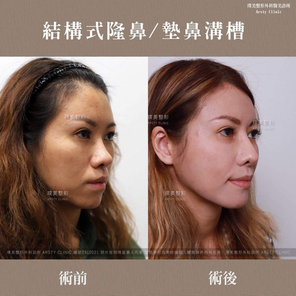 0312021結構式隆鼻手術墊鼻溝槽 8