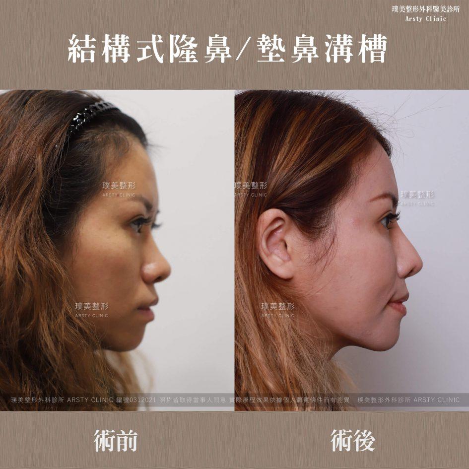 0312021結構式隆鼻手術墊鼻溝槽 9