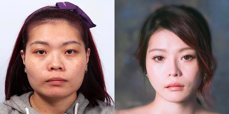0511008-削骨-縮鼻翼-割雙眼皮-隆鼻