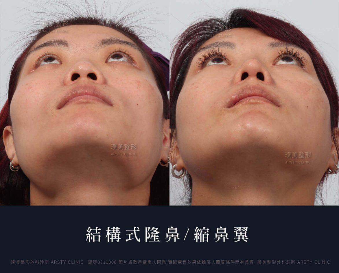 0511008-縮鼻翼-隆鼻-削骨