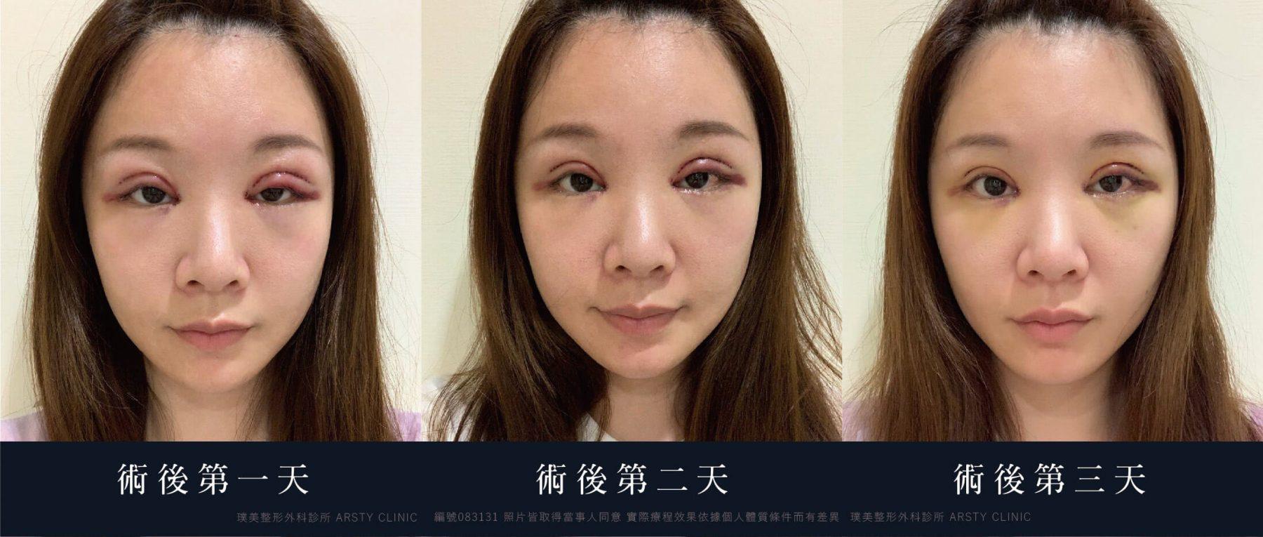 083131 割雙眼皮 開眼頭 提眼瞼肌 眉下取脂 10