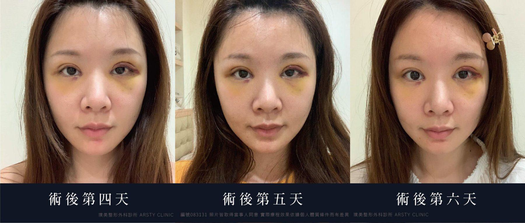 083131 割雙眼皮 開眼頭 提眼瞼肌 眉下取脂 11
