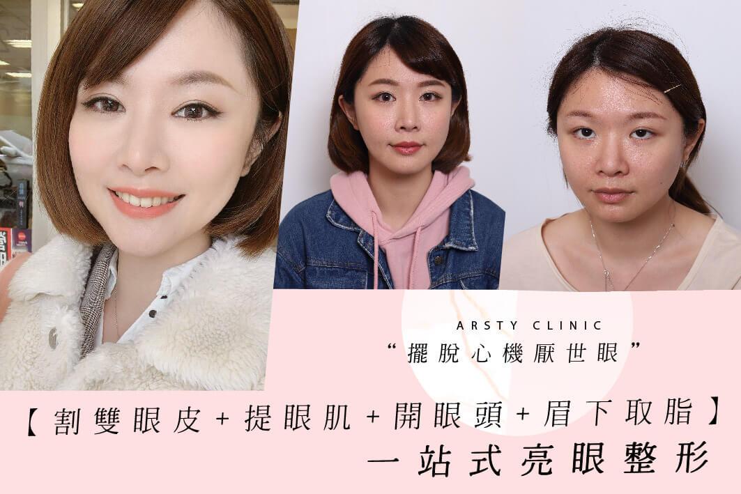 083131案例-割雙眼皮-開眼頭-提眼瞼肌-眉下取脂 (13)