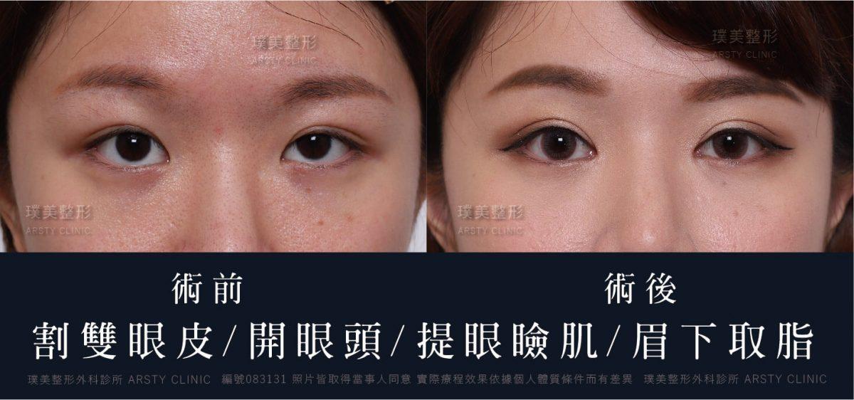 083131 割雙眼皮 開眼頭 提眼瞼肌 眉下取脂 5