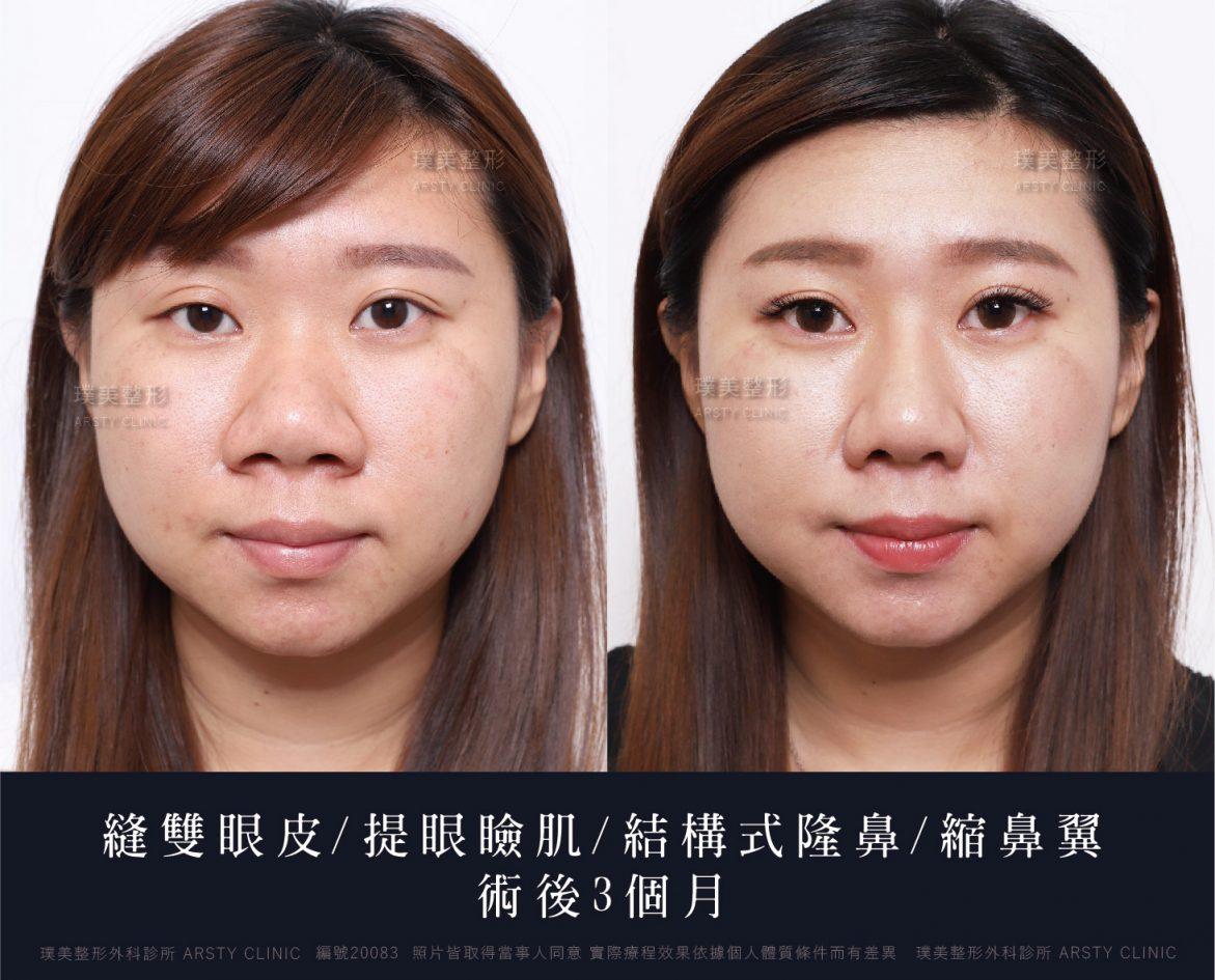052812縫雙眼皮-提眼瞼肌-結構式隆鼻-縮鼻翼