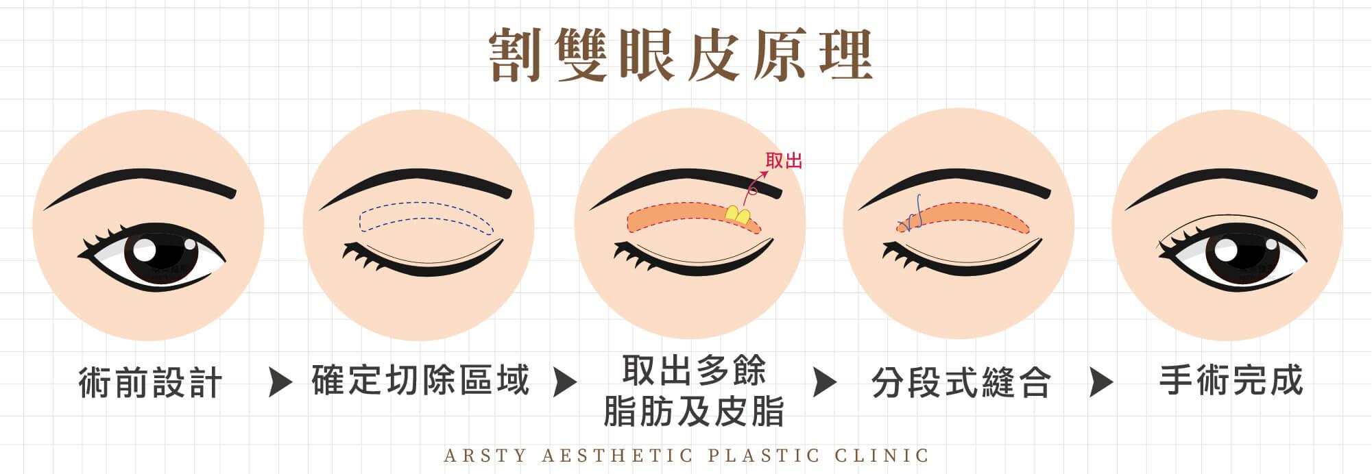 割雙眼皮手術原理