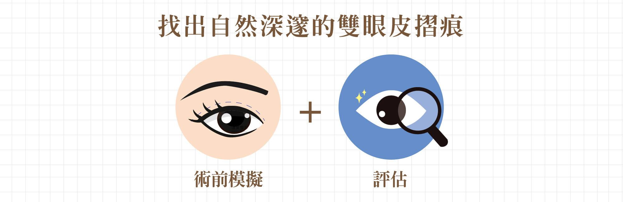 客製化美瞳 1