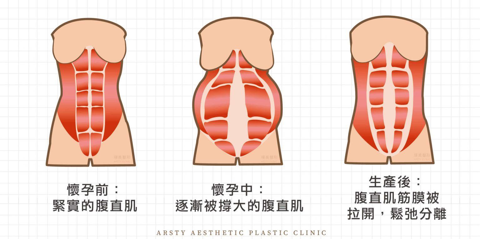 產後分離的腹直肌需要恢復縫合