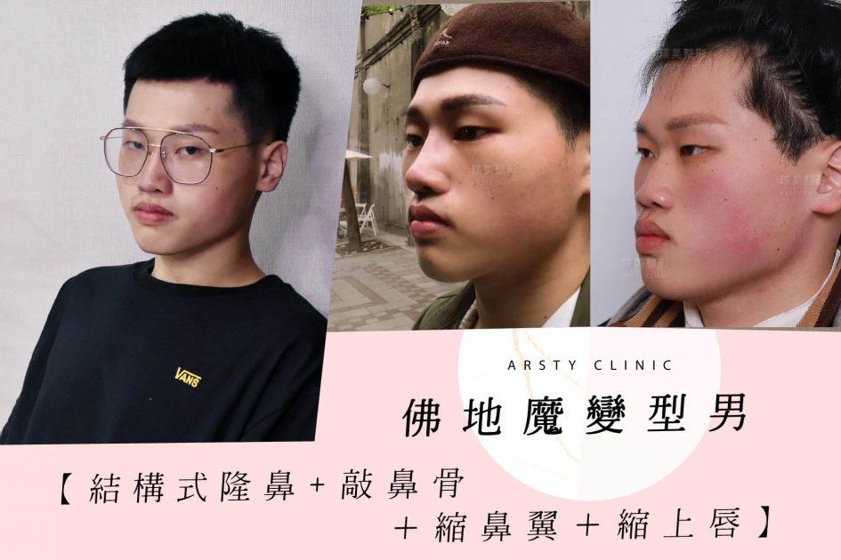 結構式隆鼻手術-縮鼻翼-敲鼻骨-縮上唇-062718