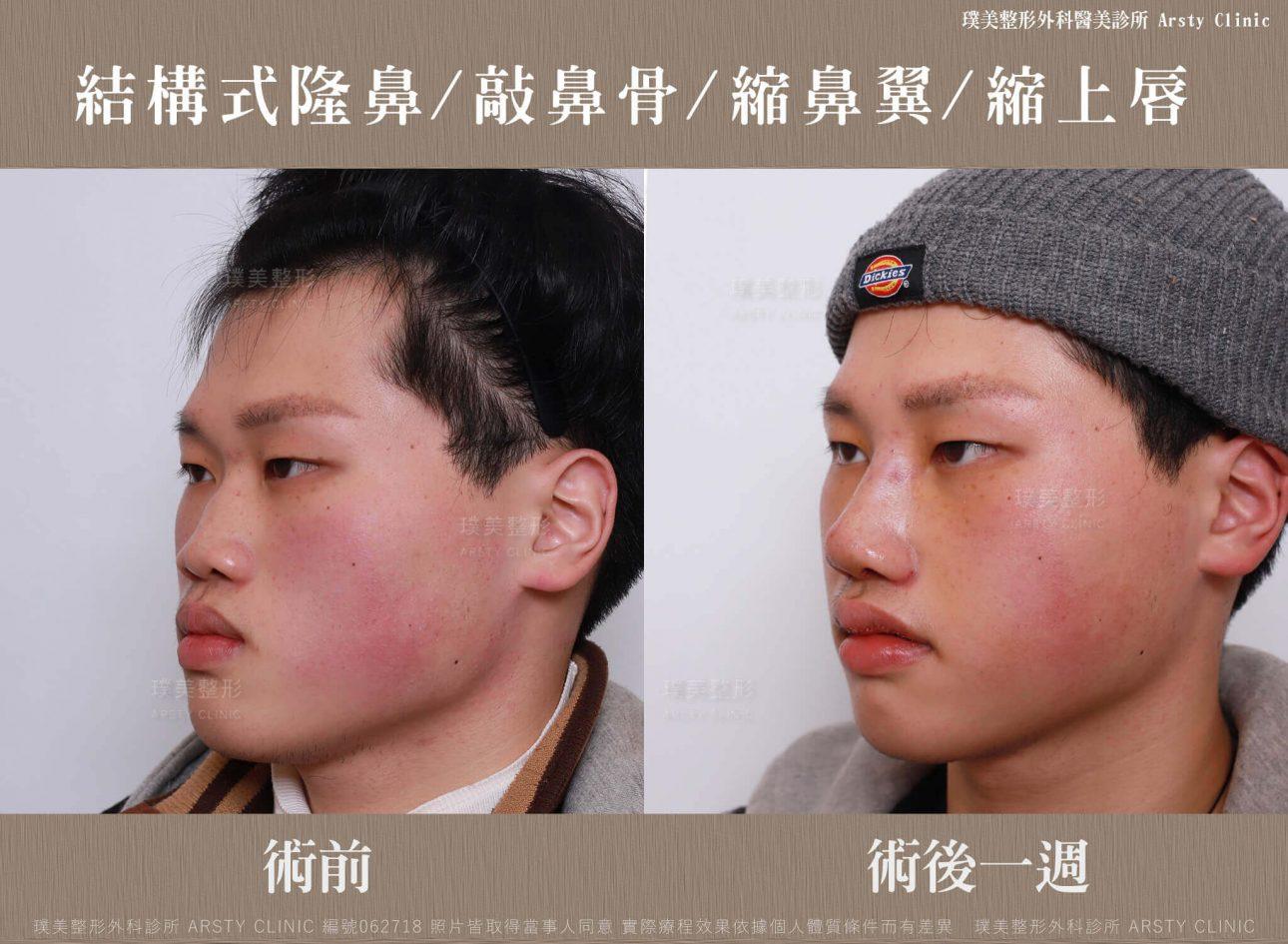 結構式隆鼻手術 縮鼻翼 敲鼻骨 縮上唇 062718 一週45度 1
