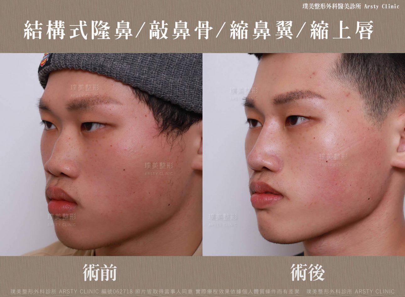 結構式隆鼻手術-縮鼻翼-敲鼻骨-縮上唇-062718-左45