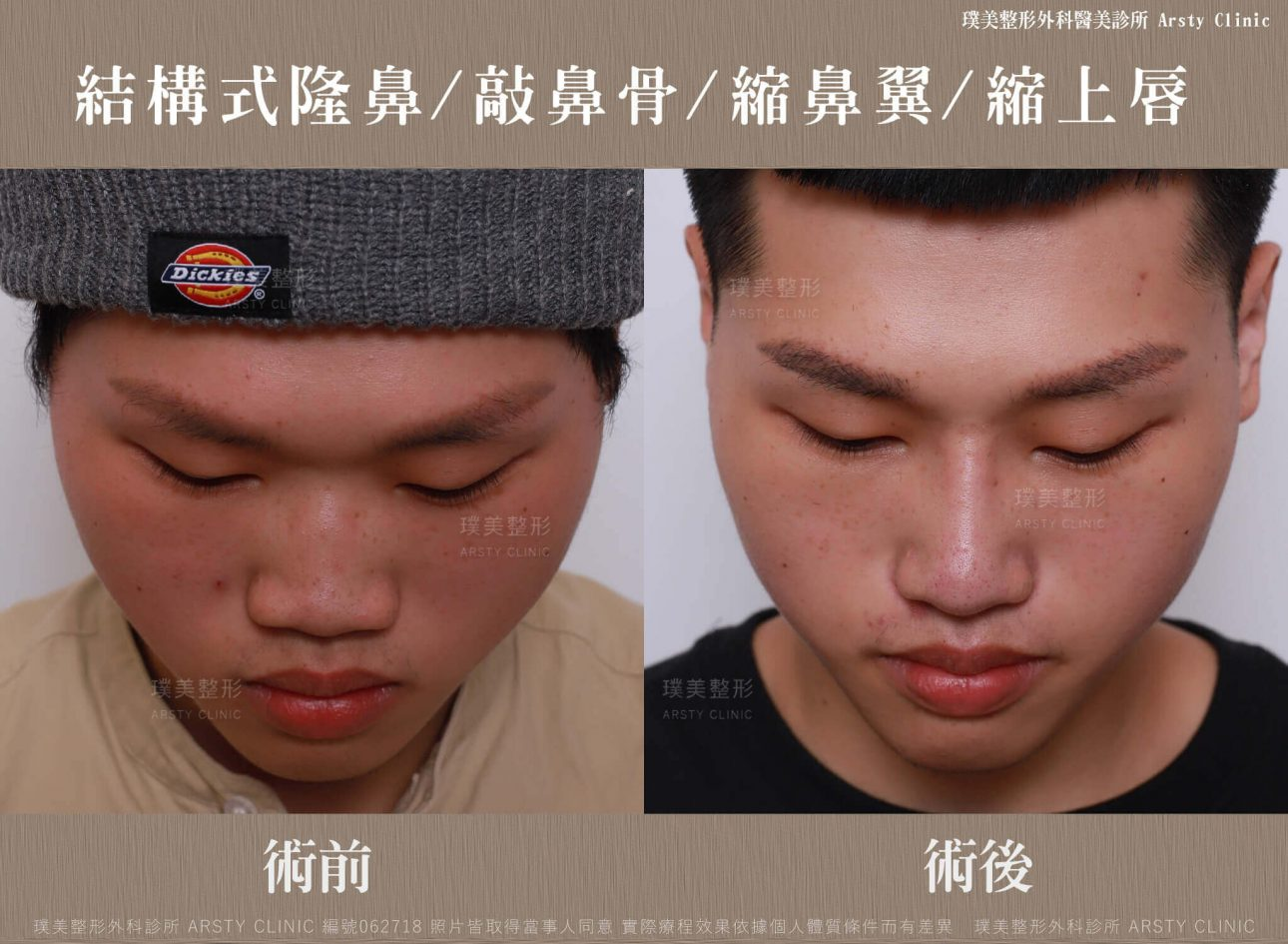 結構式隆鼻手術-縮鼻翼-敲鼻骨-縮上唇-062718-正面低頭