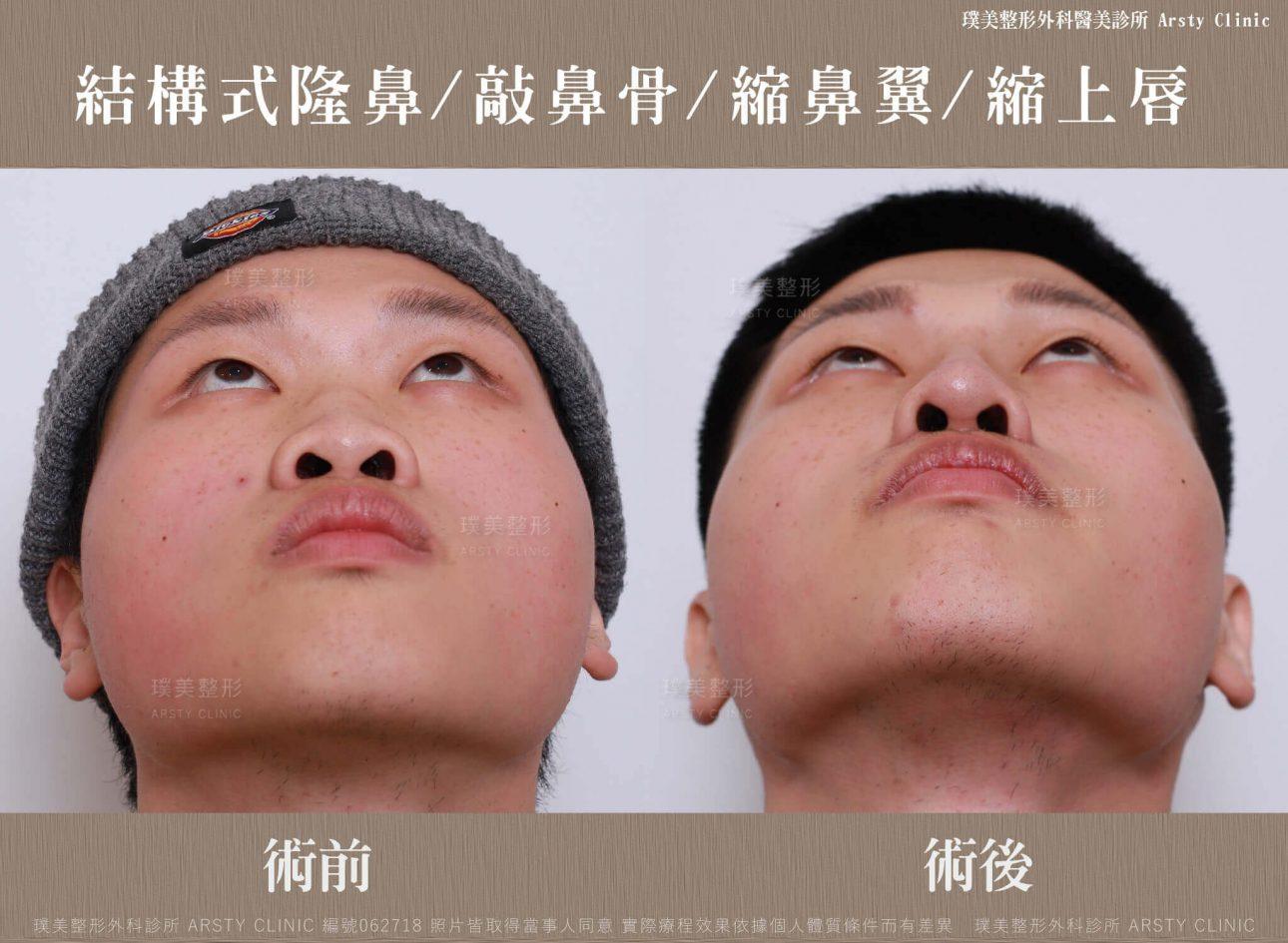 結構式隆鼻手術 縮鼻翼 敲鼻骨 縮上唇 062718 正面抬頭 1