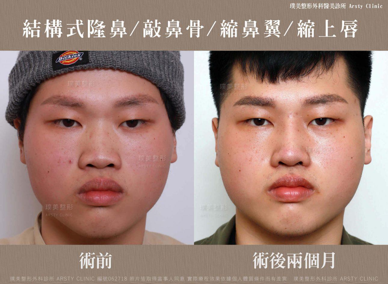 結構式隆鼻手術-縮鼻翼-敲鼻骨-縮上唇-BA-062718-兩個月週正面