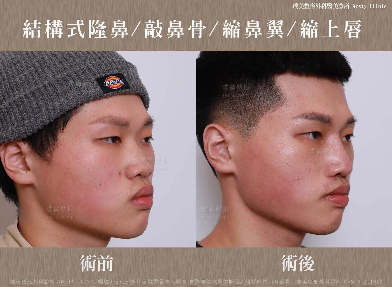 結構式隆鼻手術-縮鼻翼-敲鼻骨-縮上唇-BA-062718-右45