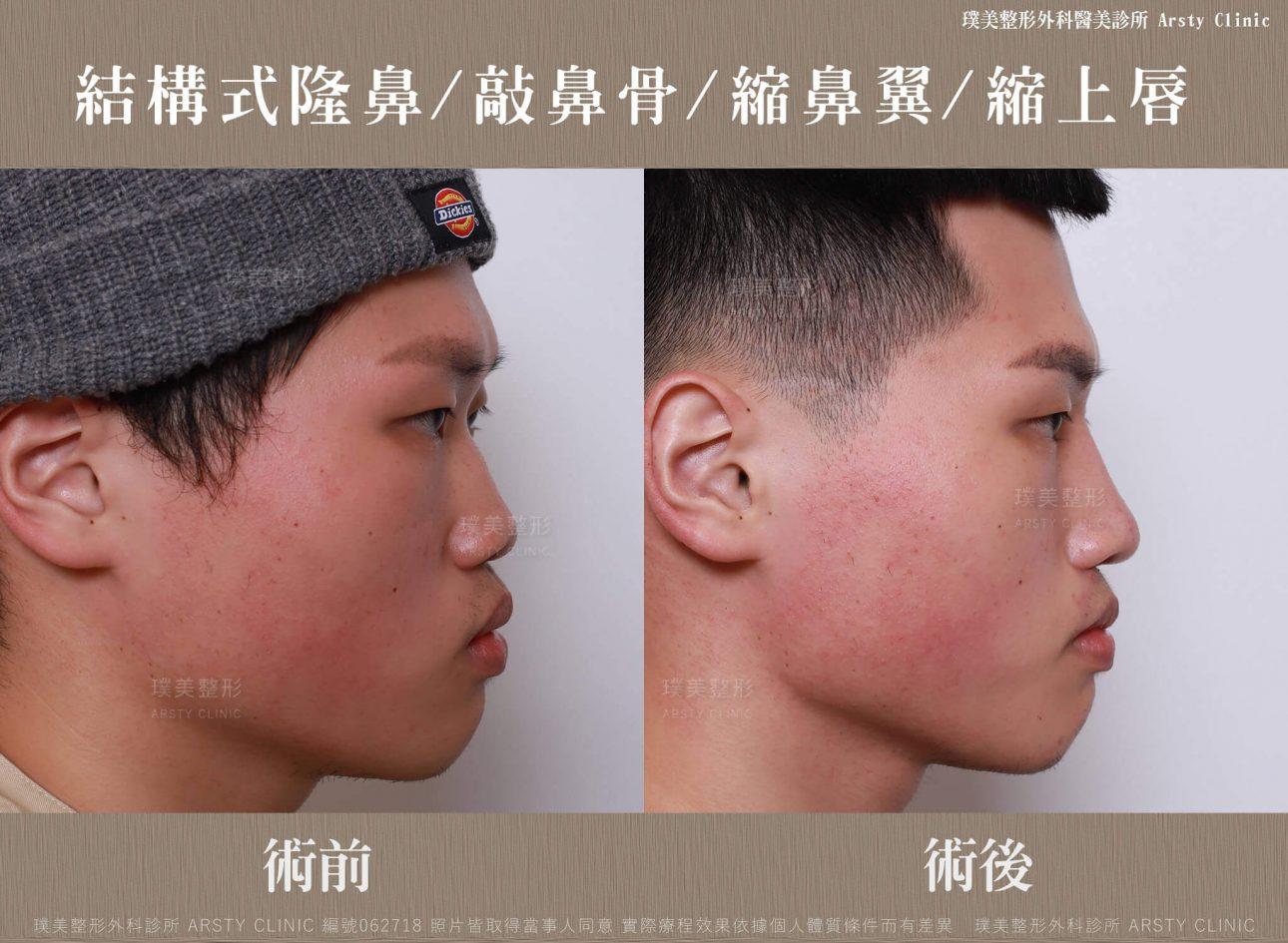 結構式隆鼻手術-縮鼻翼-敲鼻骨-縮上唇-BA-062718-右90