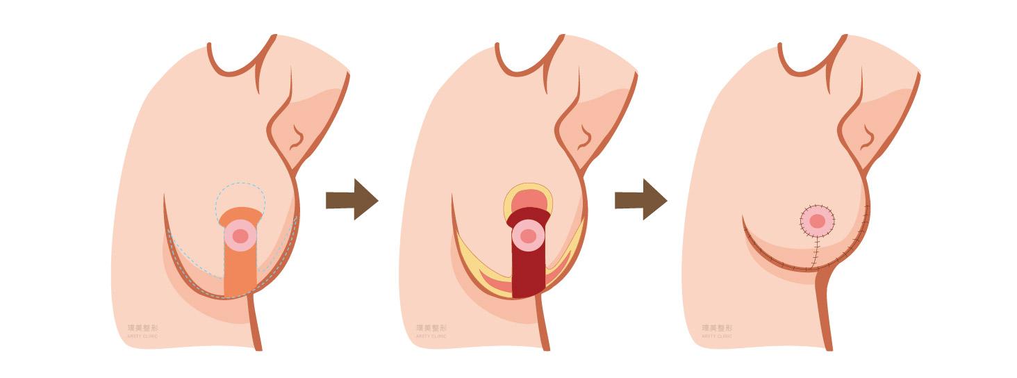 縮胸手術原理 倒T切口提胸手術