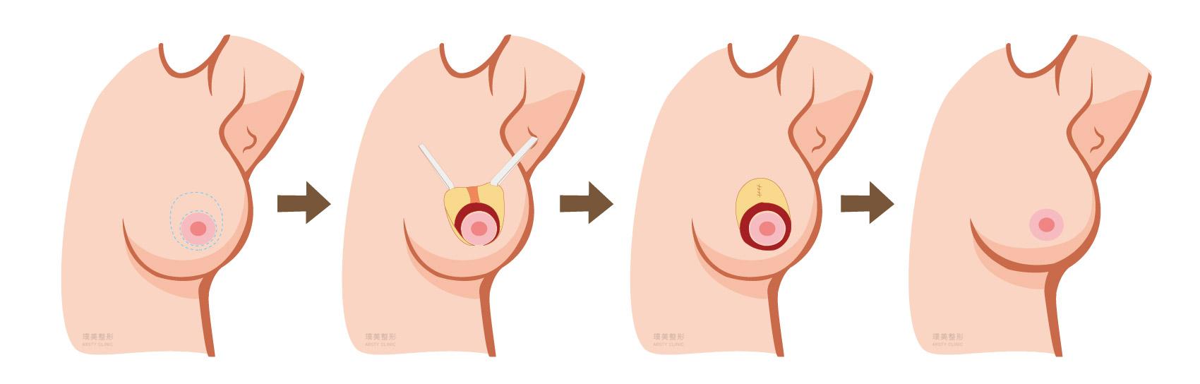 縮胸手術原理 圓形切口提乳法