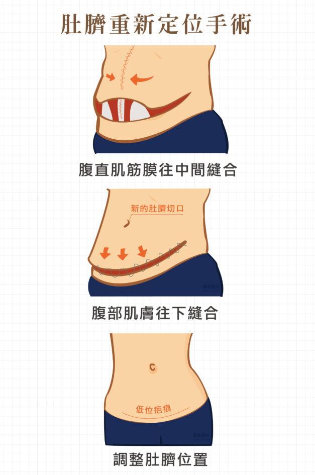 肚臍定位 腹直肌 腹部拉皮手術 產後拉皮 1