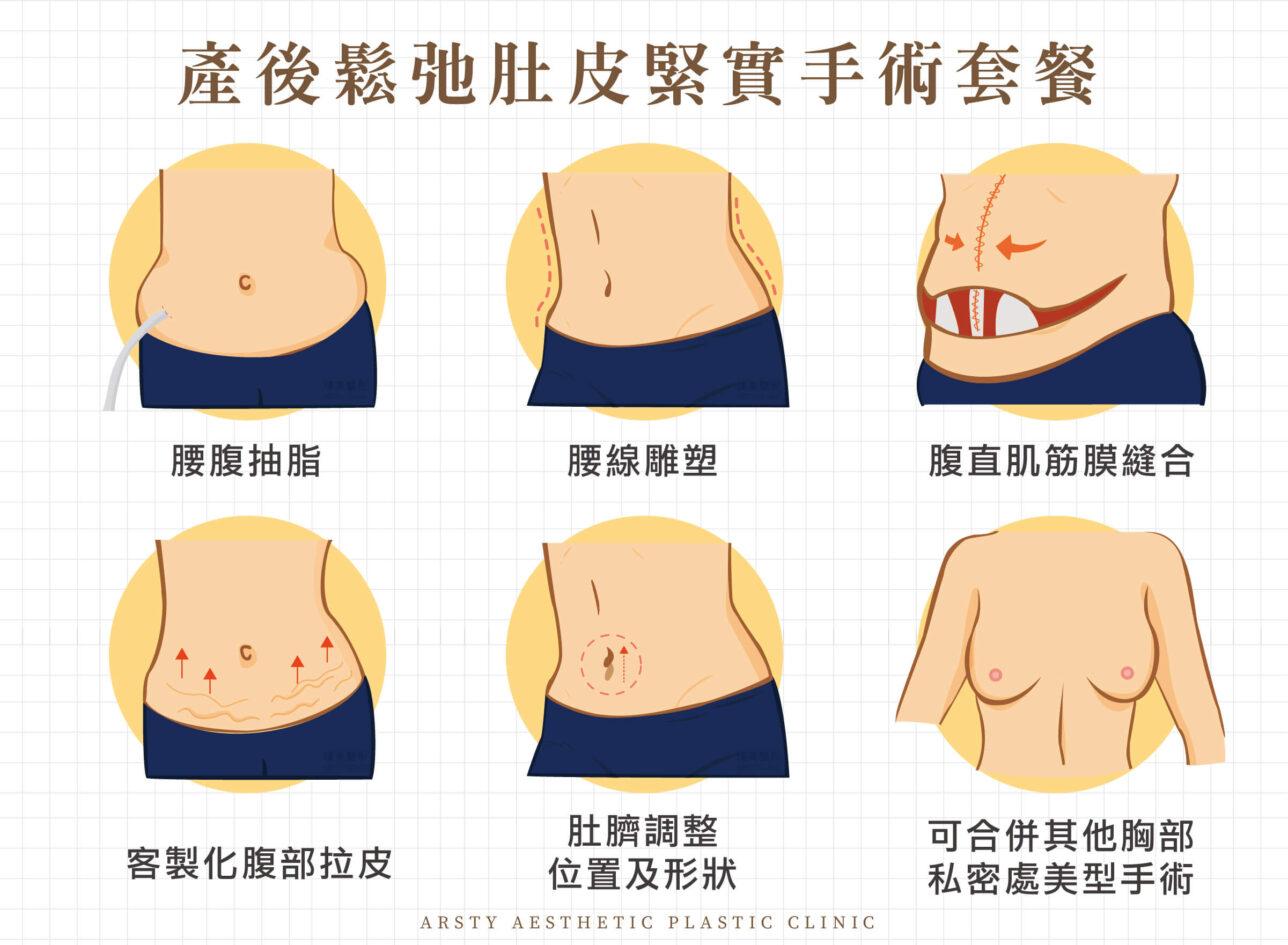 肚臍定位 腹直肌 腹部拉皮手術 產後拉皮 3