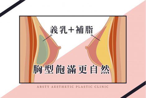 複合式隆乳 首圖