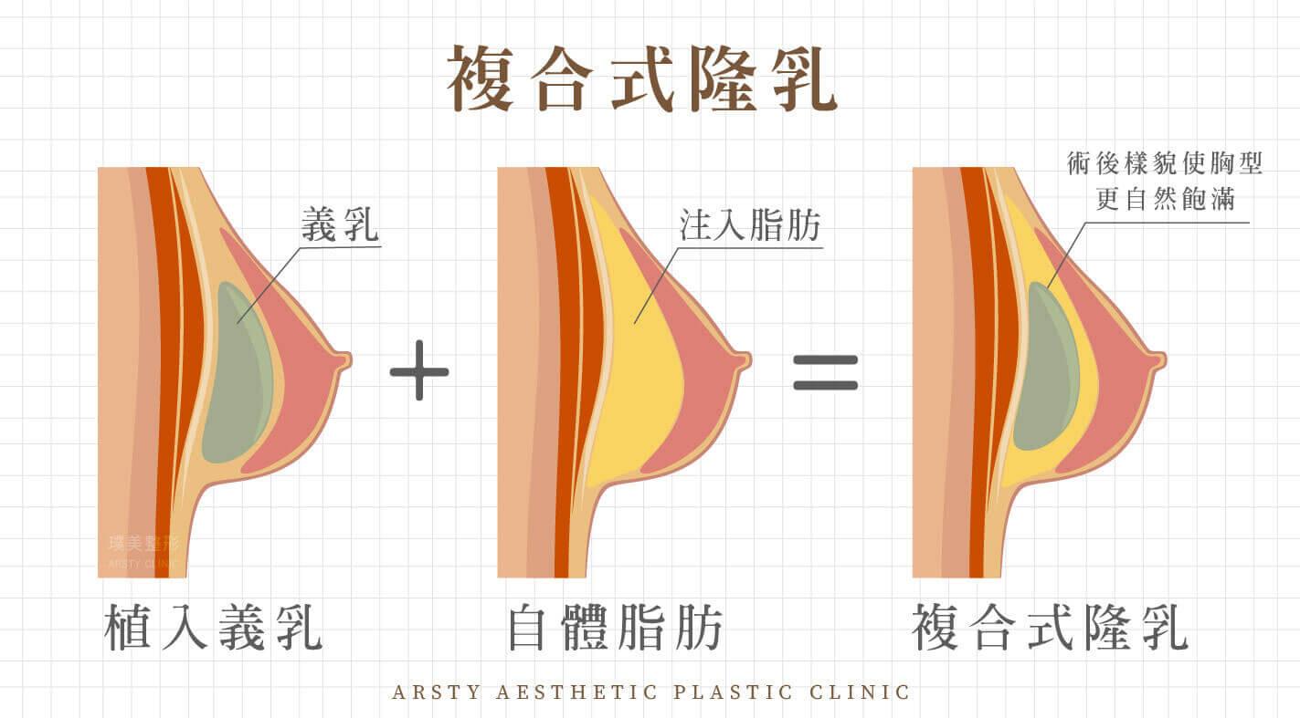 複合式隆乳