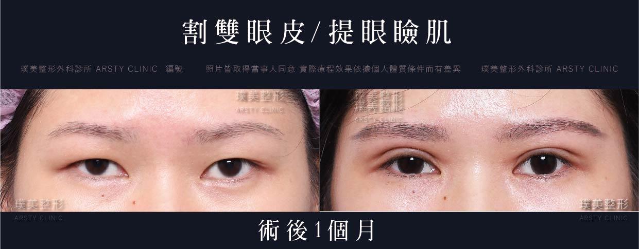 割雙眼皮手術-局案