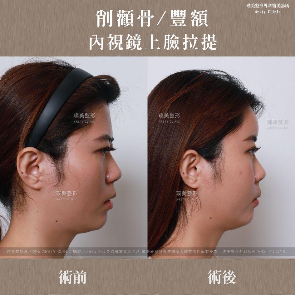 內視鏡上臉拉提 內視鏡提眉 拉皮手術 削骨 豐額 2