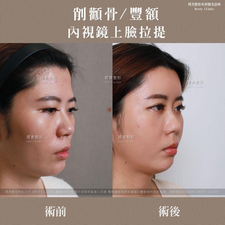 內視鏡上臉拉提 內視鏡提眉 拉皮手術 削骨 豐額 3