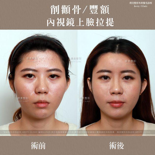內視鏡上臉拉提 內視鏡提眉 拉皮手術 削骨 豐額 4