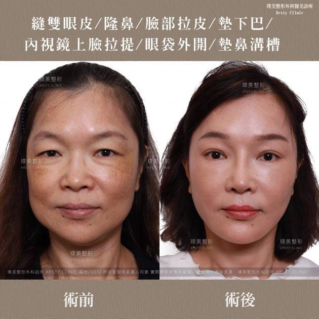 內視鏡上臉拉提 內視鏡提眉 拉皮手術 隆鼻 縫雙眼皮 墊下巴 眼袋 墊鼻溝槽 1