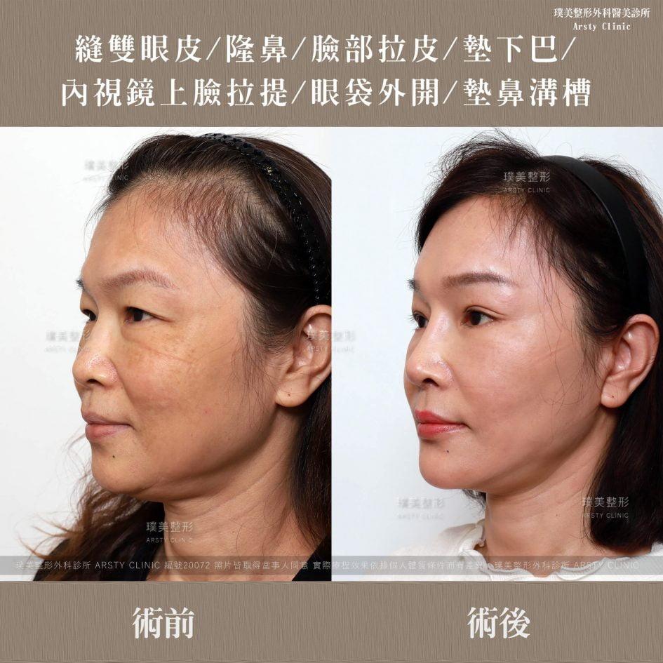 內視鏡上臉拉提 內視鏡提眉 拉皮手術 隆鼻 縫雙眼皮 墊下巴 眼袋 墊鼻溝槽 2