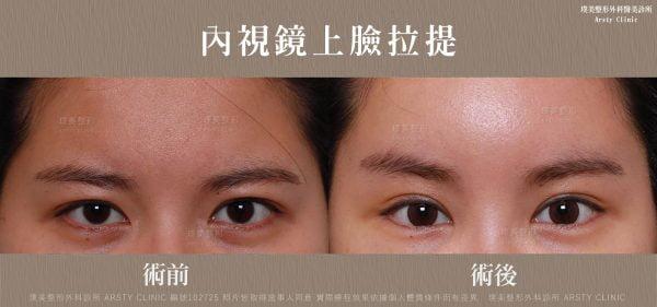 內視鏡上臉拉提 內視鏡提眉 拉皮手術 13